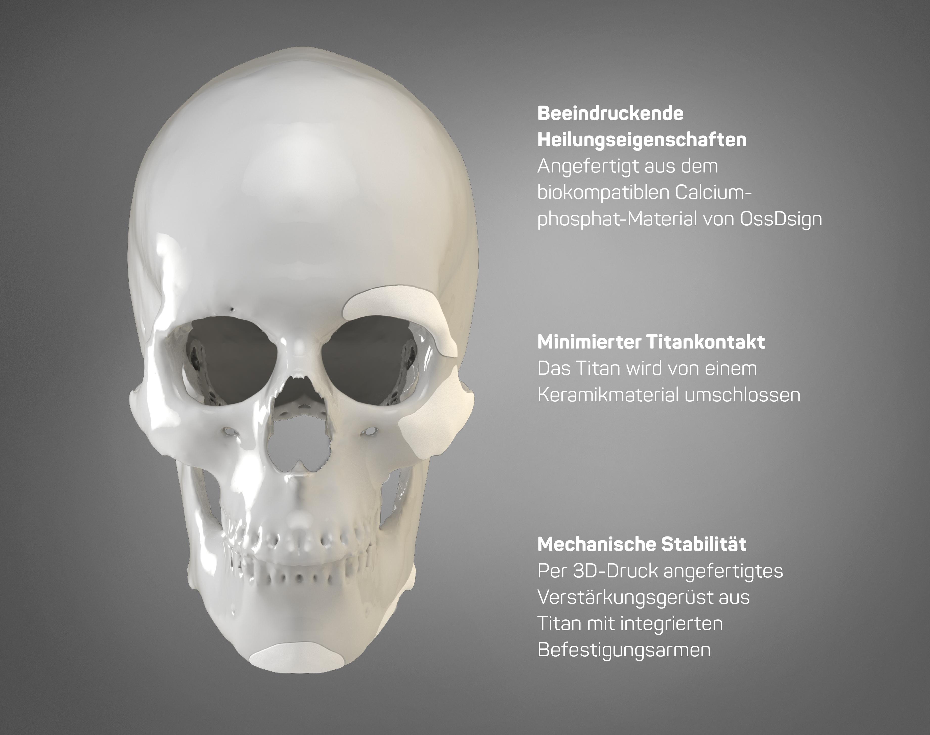 OSSDSIGN Facial PSI (de)